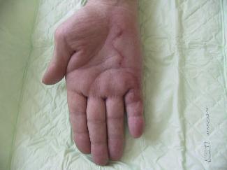 Résultat à un mois sur une forme sévère impliquant le cinquième doigt